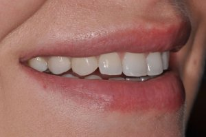 dental-implant-replacement