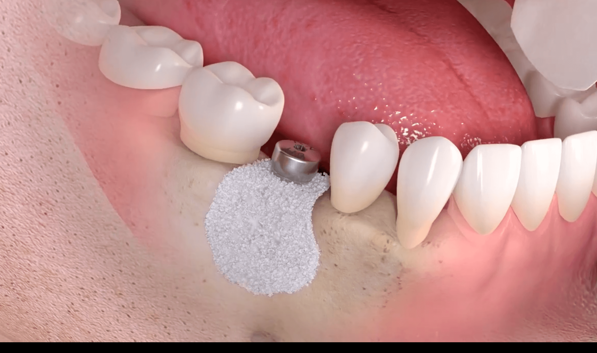 bone graft dental implant video