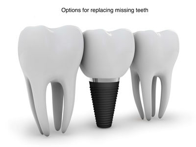 options for replacing missing teeth video