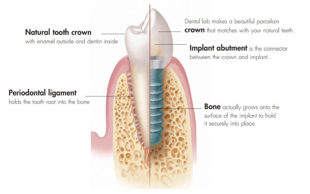 what is a dental implant diagram